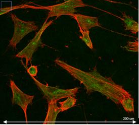 Imagerie microscopie confocale