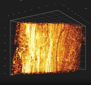 Imagerie microscopie à feuille de lumière
