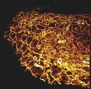 Microscopie à feuille de lumière